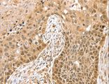 Immunohistochemistry of Human esophagus cancer using SMARCA2 Polyclonal Antibody at dilution of 1:20.