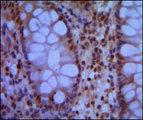 IHC of paraffin-embedded human colon using SMC1 mouse monoclonal antibody with DAB staining.