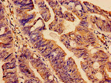 Immunohistochemistry analysis of human colon cancer at a dilution of 1:100