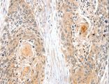 Immunohistochemistry of paraffin-embedded Human esophagus cancer using SNX3 Polyclonal Antibody at dilution of 1:35.
