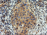 IHC of paraffin-embedded Carcinoma of Human bladder tissue using anti-SNX8 mouse monoclonal antibody.