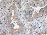 Immunohistochemical staining of paraffin-embedded Adenocarcinoma of Human colon tissue using anti-SNX9 mouse monoclonal antibody. (Dilution 1:50).