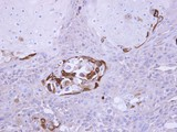 IHC of paraffin-embedded Ca922 xenograft using SOCS5 antibody at 1:100 dilution.