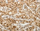 Immunohistochemistry of Human lung cancer using SOCS7 Polyclonal Antibody at dilution of 1:30.