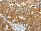 Immunohistochemistry of Human ovarian cancer using SOCS7 Polyclonal Antibody at dilution of 1:30.