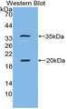 Western blot of recombinant SPINK5 / LEKTI.  This image was taken for the unconjugated form of this product. Other forms have not been tested.