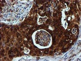 IHC of paraffin-embedded Carcinoma of Human pancreas tissue using anti-SPR mouse monoclonal antibody.