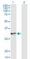 Western Blot analysis of SPR expression in transfected 293T cell line by SPR monoclonal antibody (M01), clone 4F2.Lane 1: SPR transfected lysate(28 KDa).Lane 2: Non-transfected lysate.