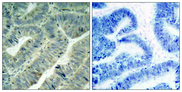 SRC Antibody - Immunohistochemistry analysis of paraffin-embedded human colon carcinoma, using Src (Phospho-Tyr418) Antibody. The picture on the right is blocked with the phospho peptide.