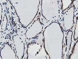 SSR1 Antibody - IHC of paraffin-embedded Human thyroid tissue using anti-SSR1 mouse monoclonal antibody.