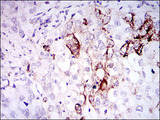 SST / Somatostatin Antibody - IHC of paraffin-embedded lung cancer tissues using SST mouse monoclonal antibody with DAB staining.