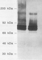 Immunoblot of recombinant pneumococcal surface protein A (PspA). Lanes: 1 and 2, phage lysate from full-length PspA+ clone with and without induction by isopropyl-ß-D-thiogalactopyranoside (IPTG), respectively; 3, cell wall extract from pneumococcal type 2 strain D39.   (McDaniel L. et al. 1991 PspA, A surface protein of Streptococcus pneumoniae, is capable of eliciting protection against Pneumococci of more than one capsular type. Infection and Immunity 59: 222-228.)