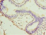 STX11 / Syntaxin 11 Antibody - Immunohistochemistry of paraffin-embedded human breast cancer using antibody at 1:100 dilution.