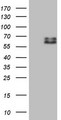 HEK293T cells were transfected with the pCMV6-ENTRY control (Left lane) or pCMV6-ENTRY SUOX (Right lane) cDNA for 48 hrs and lysed. Equivalent amounts of cell lysates (5 ug per lane) were separated by SDS-PAGE and immunoblotted with anti-SUOX.