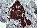 IHC of paraffin-embedded Human pancreas tissue using anti-SYP mouse monoclonal antibody.