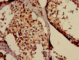 Immunohistochemistry of paraffin-embedded human testis tissue using TAF6L Antibody at dilution of 1:100