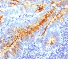 TAG-72 antibody B72.3 + CA72/733 immunohistochemistry colon cancer.  This image was taken for the unmodified form of this product. Other forms have not been tested.
