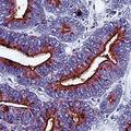 Formalin-fixed, paraffin-embedded human colon carcinoma stained with TAG-72 antibody LS-C95491.