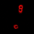 TAP2 Antibody - Immunofluorescent analysis of TAP2 staining in U2OS cells. Formalin-fixed cells were permeabilized with 0.1% Triton X-100 in TBS for 5-10 minutes and blocked with 3% BSA-PBS for 30 minutes at room temperature. Cells were probed with the primary antibody in 3% BSA-PBS and incubated overnight at 4 deg C in a humidified chamber. Cells were washed with PBST and incubated with a DyLight 594-conjugated secondary antibody (red) in PBS at room temperature in the dark.