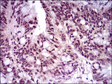 TBXT / T / Brachyury Antibody - IHC of paraffin-embedded rectum cancer tissues using T mouse monoclonal antibody with DAB staining.