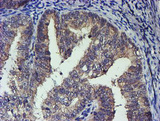 TCP11L2 Antibody - IHC of paraffin-embedded Adenocarcinoma of Human endometrium tissue using anti-TCP11L2 mouse monoclonal antibody. (Heat-induced epitope retrieval by 10mM citric buffer, pH6.0, 100C for 10min).