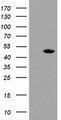 HEK293T cells were transfected with the pCMV6-ENTRY control (Left lane) or pCMV6-ENTRY TDO2 (Right lane) cDNA for 48 hrs and lysed. Equivalent amounts of cell lysates (5 ug per lane) were separated by SDS-PAGE and immunoblotted with anti-TDO2.