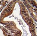 TDP2 / TTRAP Antibody - EAPII Antibody immunohistochemistry of formalin-fixed and paraffin-embedded human prostate carcinoma followed by peroxidase-conjugated secondary antibody and DAB staining.