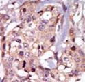 TEC Antibody - Formalin-fixed and paraffin-embedded human cancer tissue reacted with the primary antibody, which was peroxidase-conjugated to the secondary antibody, followed by AEC staining. This data demonstrates the use of this antibody for immunohistochemistry; clinical relevance has not been evaluated. BC = breast carcinoma; HC = hepatocarcinoma.