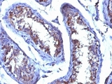 Formalin-fixed. Paraffin-embedded human testicular carcinoma stained with Testosterone antibody (4E1G2) This image was taken for the unmodified form of this product. Other forms have not been tested.
