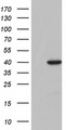 HEK293T cells were transfected with the pCMV6-ENTRY control (Left lane) or pCMV6-ENTRY TFB1M (Right lane) cDNA for 48 hrs and lysed. Equivalent amounts of cell lysates (5 ug per lane) were separated by SDS-PAGE and immunoblotted with anti-TFB1M.