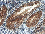 TFG Antibody - IHC of paraffin-embedded Adenocarcinoma of Human endometrium tissue using anti-TFG mouse monoclonal antibody.