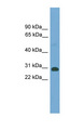 TGIFX1 antibody Western blot of Mouse Muscle lysate. This image was taken for the unconjugated form of this product. Other forms have not been tested.