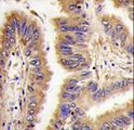 TGM2 / Transglutaminase 2 Antibody - Formalin-fixed and paraffin-embedded human lung carcinoma tissue reacted with *TGM2 antibody (Center K444), which was peroxidase-conjugated to the secondary antibody, followed by DAB staining. This data demonstrates the use of this antibody for immunohistochemistry; clinical relevance has not been evaluated.