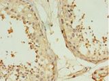 TMEM141 Antibody - Immunohistochemistry of paraffin-embedded human testis using antibody at 1:100 dilution.  This image was taken for the unconjugated form of this product. Other forms have not been tested.