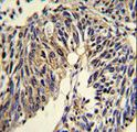TNFRSF14 / CD270 / HVEM Antibody - Formalin-fixed and paraffin-embedded human lung carcinoma reacted with TNFRSF14 Antibody , which was peroxidase-conjugated to the secondary antibody, followed by DAB staining. This data demonstrates the use of this antibody for immunohistochemistry; clinical relevance has not been evaluated.