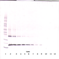 TNFSF10 / TRAIL Antibody - Anti-Human sTRAIL/Apo2L Western Blot Reduced