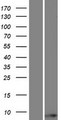 TOMM6 Protein - Western validation with an anti-DDK antibody * L: Control HEK293 lysate R: Over-expression lysate
