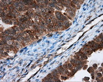 IHC of paraffin-embedded Adenocarcinoma of ovary tissue using anti-TPMT mouse monoclonal antibody. (Dilution 1:50).