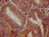 TRIM26 Antibody - Immunohistochemistry Dilution at 1:300 and staining in paraffin-embedded human endometrial cancer performed on a Leica BondTM system. After dewaxing and hydration, antigen retrieval was mediated by high pressure in a citrate buffer (pH 6.0). Section was blocked with 10% normal Goat serum 30min at RT. Then primary antibody (1% BSA) was incubated at 4°C overnight. The primary is detected by a biotinylated Secondary antibody and visualized using an HRP conjugated SP system.