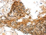 Immunohistochemistry of paraffin-embedded Human esophagus cancer using TRIM35 Polyclonal Antibody at dilution of 1:25.