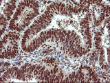 IHC of paraffin-embedded Adenocarcinoma of Human endometrium tissue using anti-TRIM38 mouse monoclonal antibody.