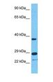TRIM40 Antibody - Western blot of TRI40 Antibody with human Jurkat Whole Cell lysate.  This image was taken for the unconjugated form of this product. Other forms have not been tested.