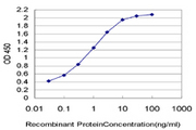 TSPAN20 / UPK1B Antibody - Detection limit for recombinant GST tagged UPK1B is approximately 0.03 ng/ml as a capture antibody.