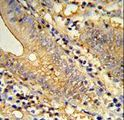 Formalin-fixed and paraffin-embedded human colon carcinoma reacted with TSPAN33 Antibody , which was peroxidase-conjugated to the secondary antibody, followed by DAB staining. This data demonstrates the use of this antibody for immunohistochemistry; clinical relevance has not been evaluated.