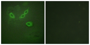 TUSC5 Antibody - Immunofluorescence analysis of HeLa cells, using TUSC5 Antibody. The picture on the right is blocked with the synthesized peptide.