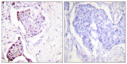 Ubiquitin Antibody - Immunohistochemistry analysis of paraffin-embedded human breast carcinoma tissue, using Ubiquitin Antibody. The picture on the right is blocked with the synthesized peptide.