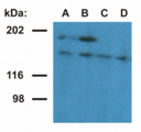 Western blotting analysis of ubinuclein in nuclear fraction of HeLa cells. The monoclonal antibody UBN1-01 (lane A, B) detects ubinuclein 1 (165 kDa) and an 180 kDa protein - presumable ubinuclein 2. The antibody UBN1-02 (lane C, D) detects ubinuclein 1. Antibody dilution: A, C - 1 µg/ml; B, D - 5 µg/ml.