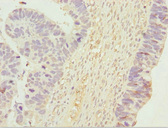 UGT2B10 Antibody - Immunohistochemistry of paraffin-embedded human ovarian cancer at dilution 1:100