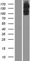 ULK4 Protein - Western validation with an anti-DDK antibody * L: Control HEK293 lysate R: Over-expression lysate