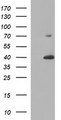 UPRT Antibody - HEK293T cells were transfected with the pCMV6-ENTRY control (Left lane) or pCMV6-ENTRY UPRT (Right lane) cDNA for 48 hrs and lysed. Equivalent amounts of cell lysates (5 ug per lane) were separated by SDS-PAGE and immunoblotted with anti-UPRT.